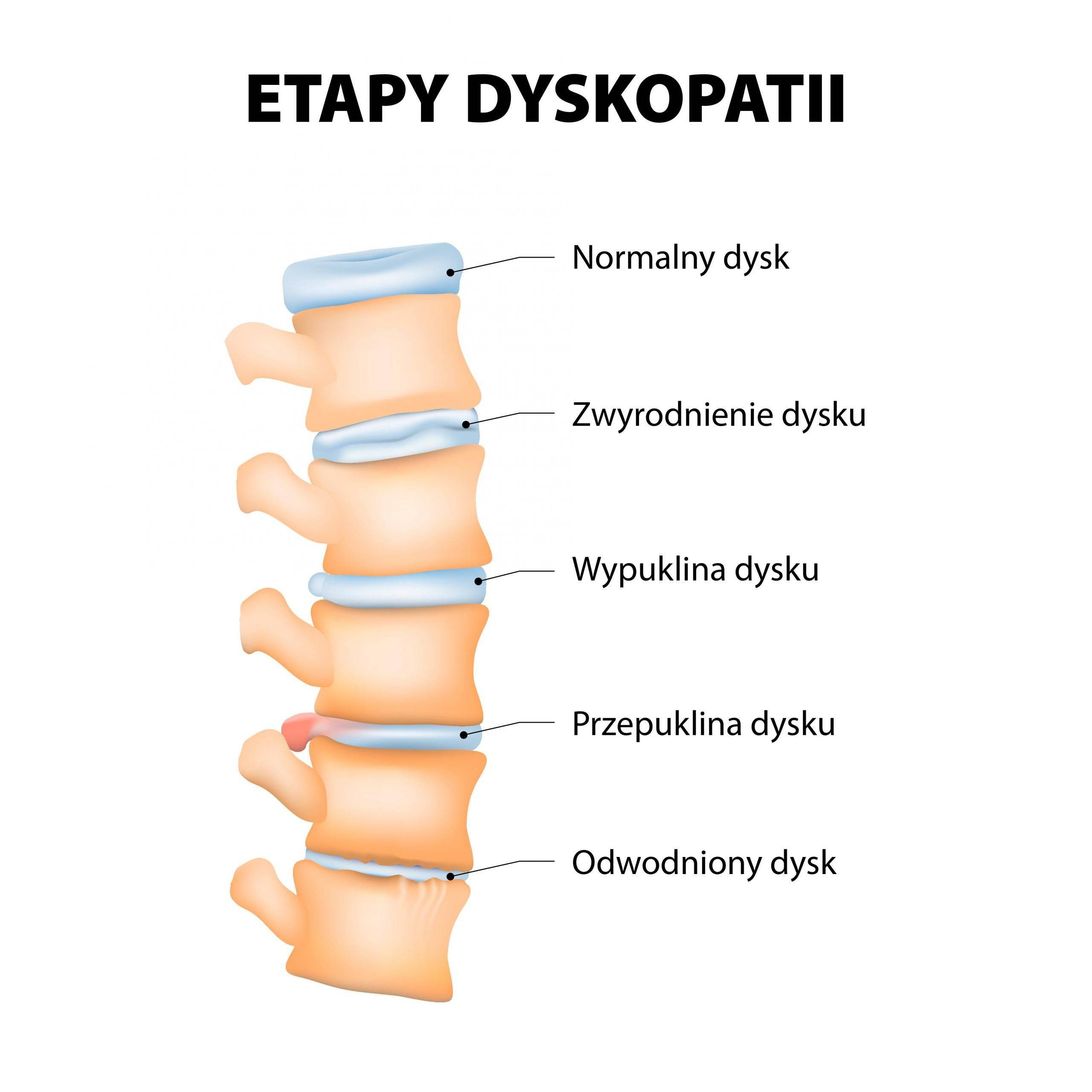 Etapy dyskopatii kręgosłupa - infografika.