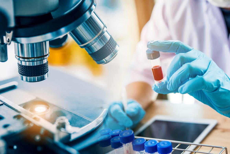 Koronawirus SARS-CoV-2 wywołujący chorobę COVID-19. Co musisz o nim wiedzieć?