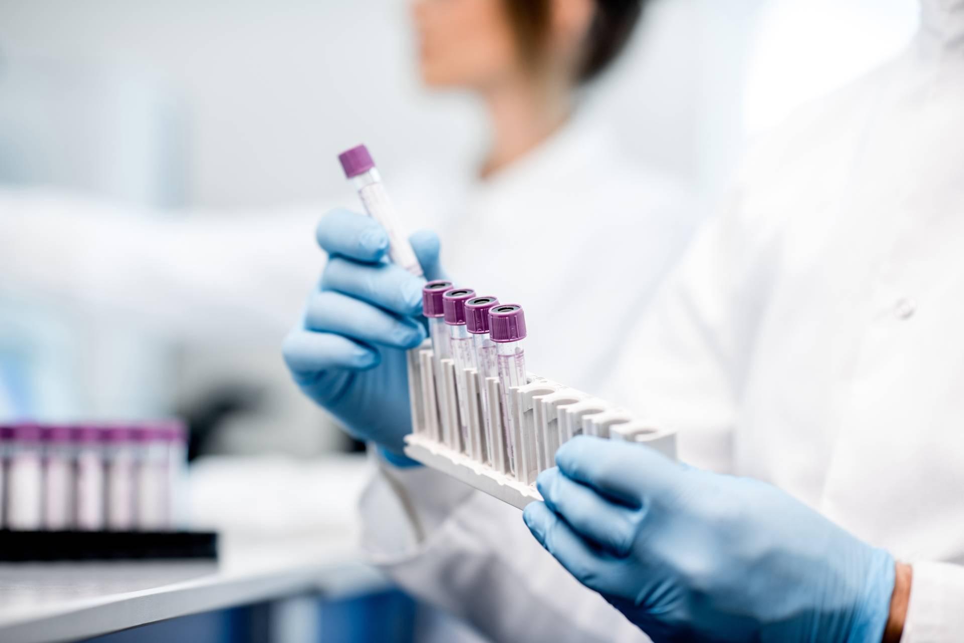 Leczenie raka trzustki. Badanie próbek w laboratorium.