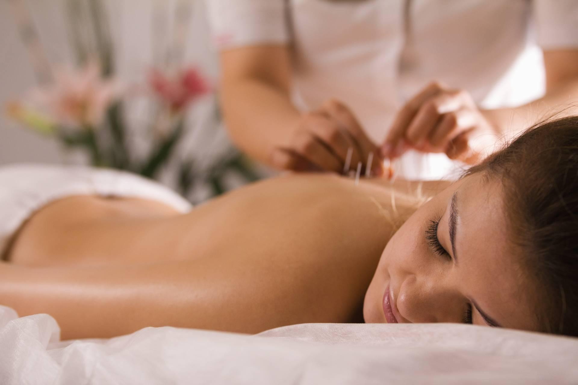 Akupunktura na reumatyzm. Młoda dziewczyna leży na łóżku do masażu w gabinecie, a specjalistka od akupunktury wbija jej igiełki w plecy.