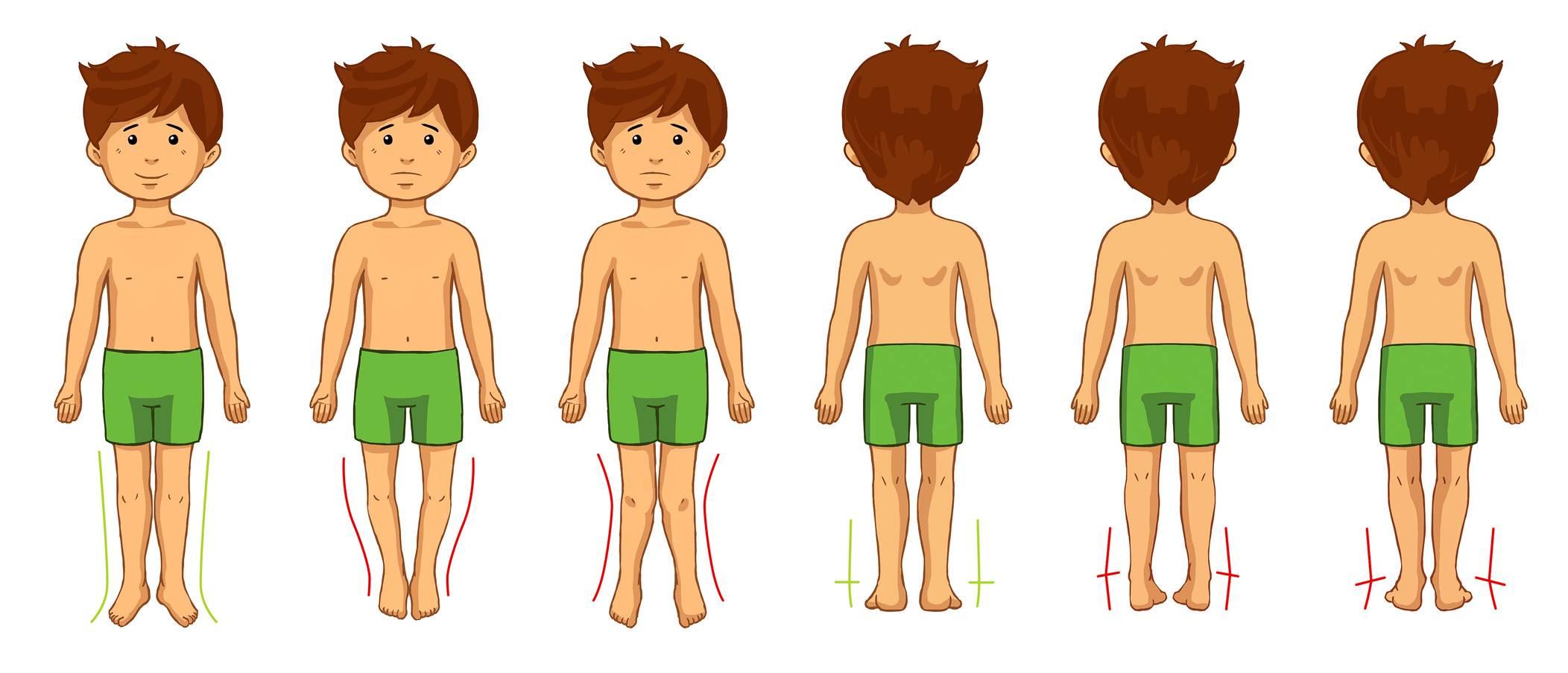 Wady postawy u dzieci - skrzywienie nóg.